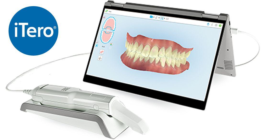 iTero – 3D Scanner